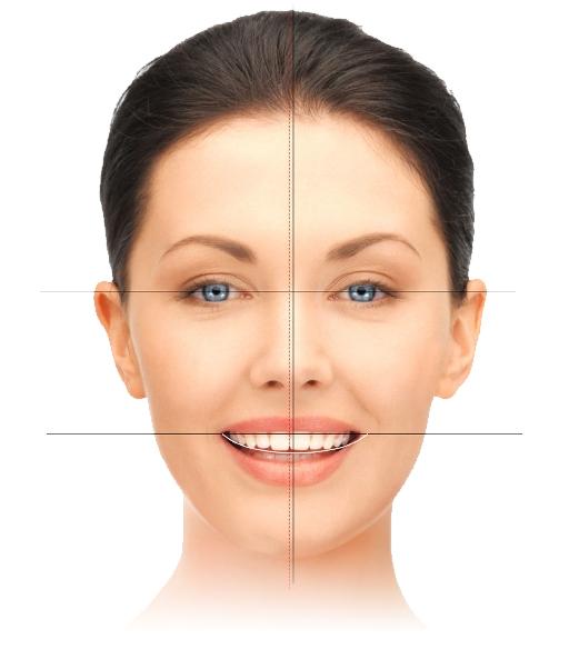 Hollywood smile - estetska stomatologija