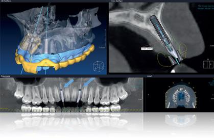 Kako izgleda snimka zubi nakon ugradnje zubnih implantata