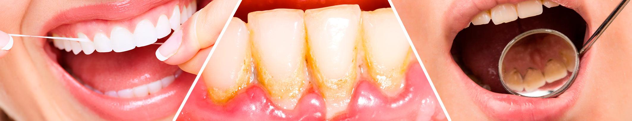 profesionalno čišćenje zubi