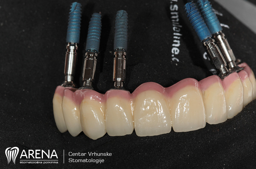 Zubni implantati - metoda All-on-6