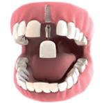 Ugradnja zubnog implantata u slučaju nedostatka jednog zuba