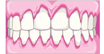 Parodontitis - simptomi i liječenje