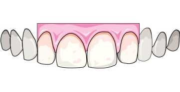 Zdrava gingiva (zubno meso)