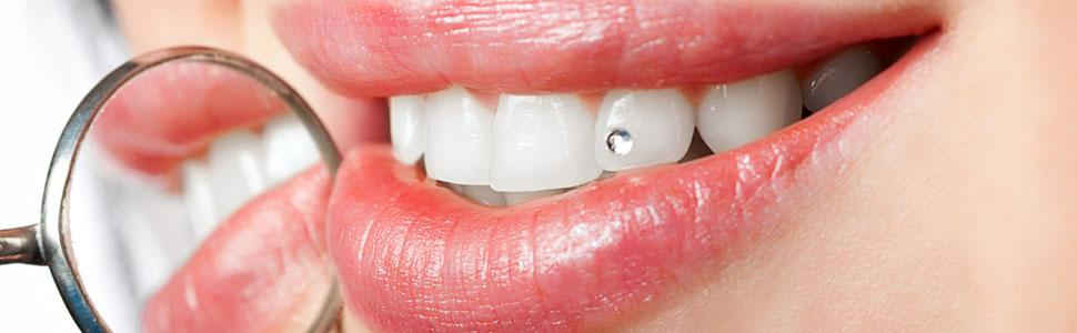 Zubni nakit za prekrasan osmijeh