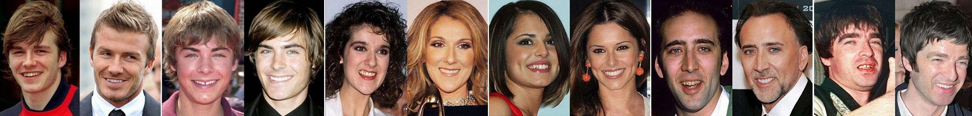 Osmijeh svjetskih zvijezda - Hollywood Smile