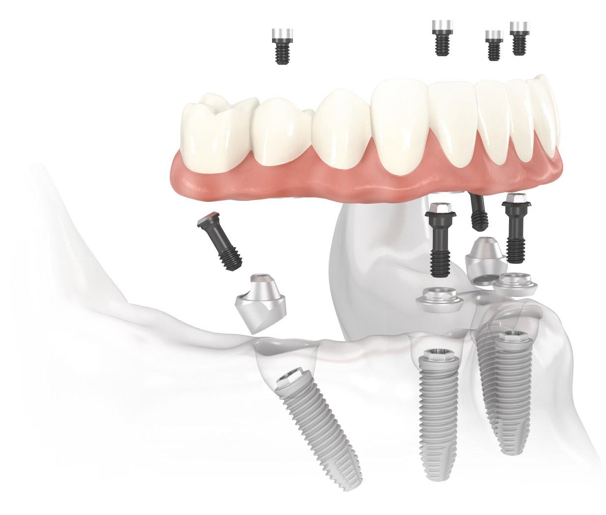 Zubni implantati - implantologija postupak ugradnje