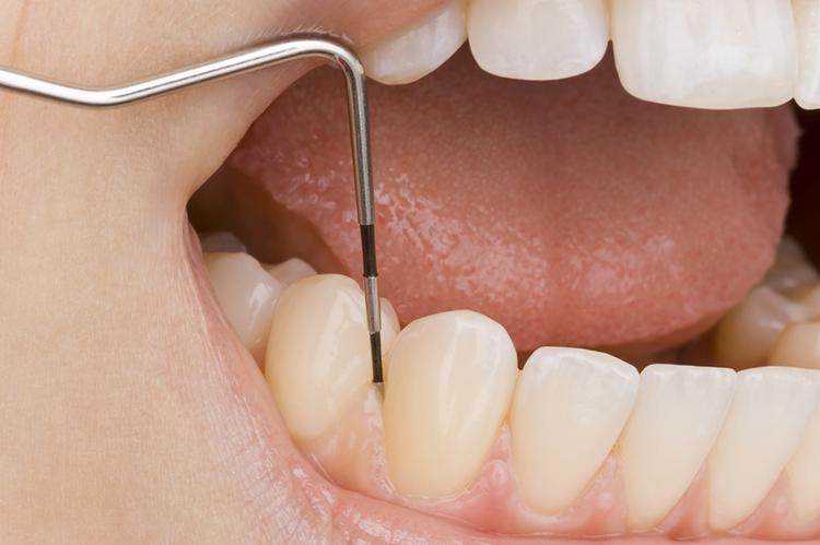 liječenje parodontitisa u poliklinici Arena