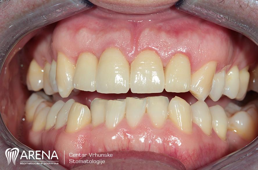 Nakon ugradnje zubnog implantata