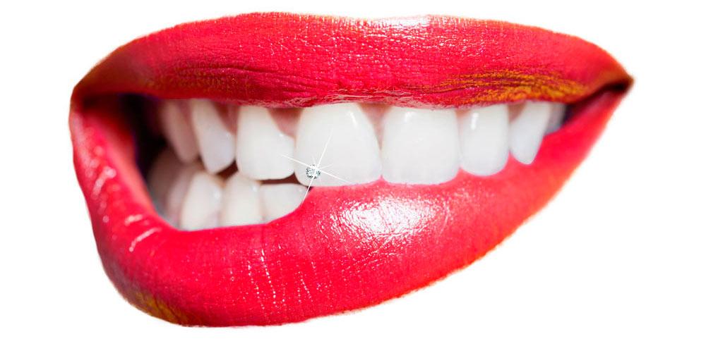 Zubni nakit i prekrasan osmijeh