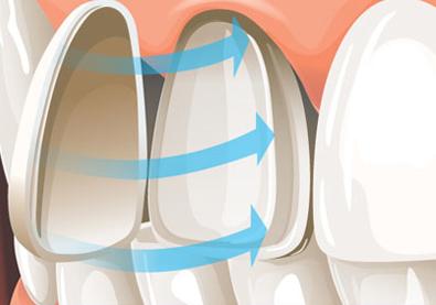 Zubne ljuskice, poliklinika Arena