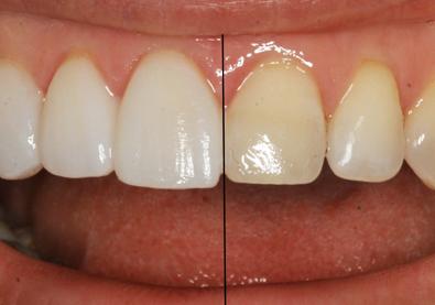 promjena izgleda zuba pomoću zubnih ljuskica