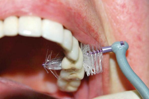 Oralna higijena zubnog implantata