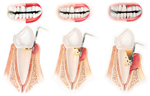 Parodontitis simptomi i liječenje
